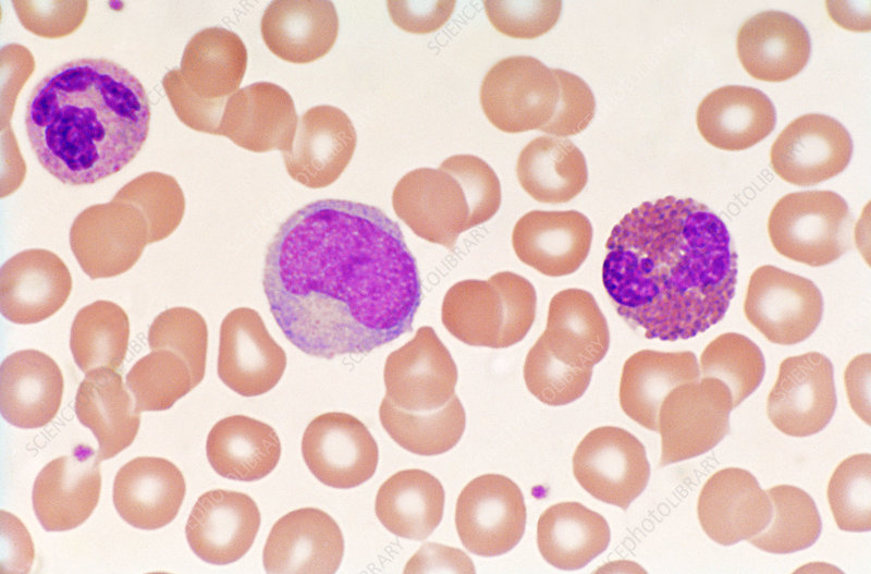 Normal blood smear, light micrograph