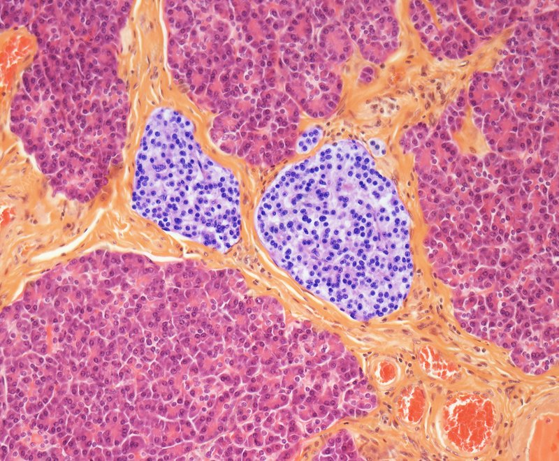 Pancreas, light micrograph