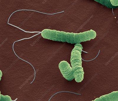 Helicobacter pylori bacteria sem