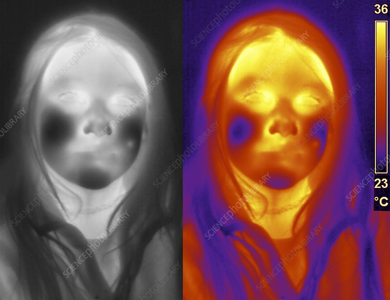 Girl's face, thermogram