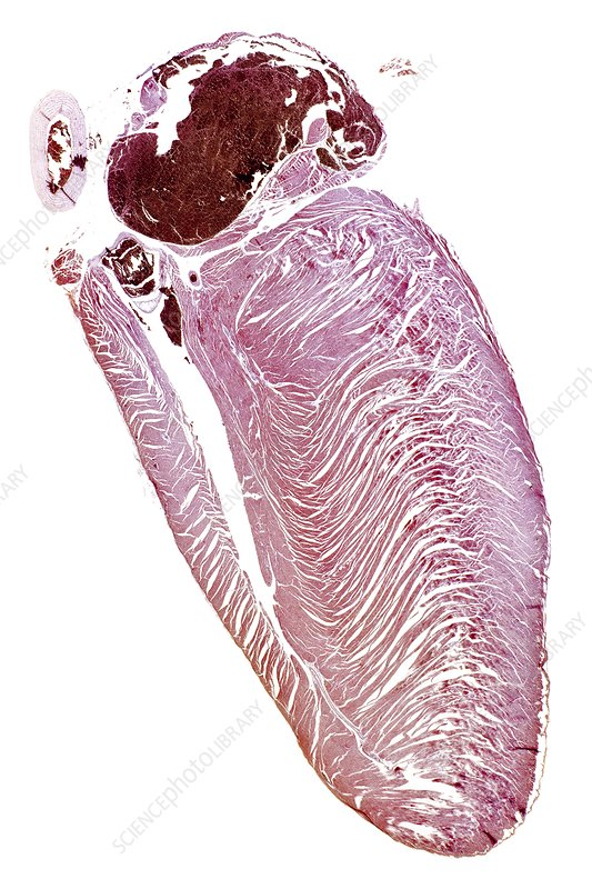 House martin heart, light micrograph