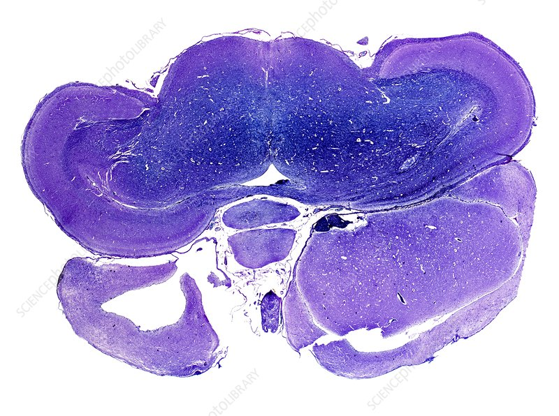 Quail brain, light micrograph