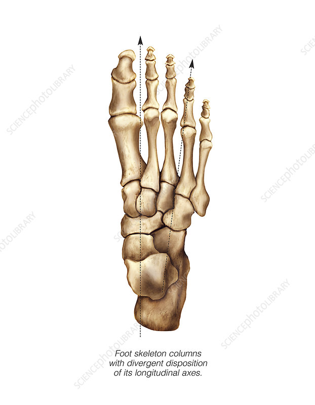 Foot deformations, artwork