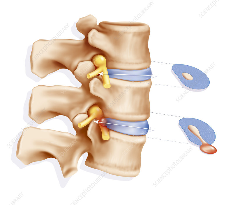 Herniated Disc, Illustration