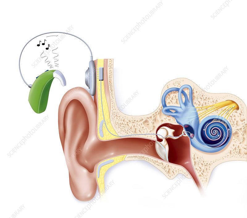 Cochlear Implant, Illustration