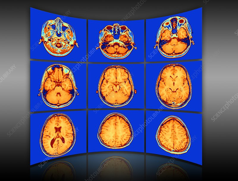 Brain mri scans display wall, artwork