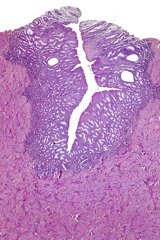 human uterus light micrograph