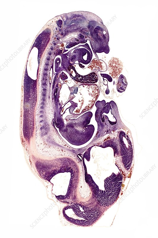 Woodmouse foetus, light micrograph