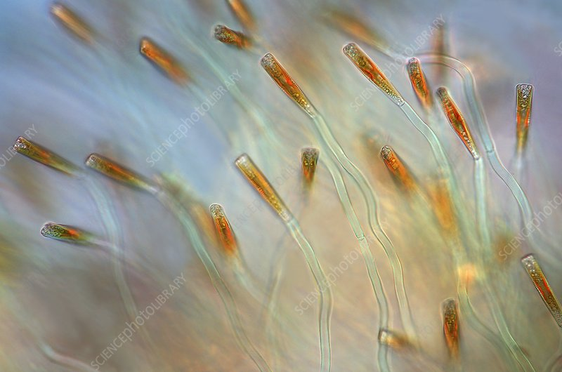 Diatoms, light micrograph