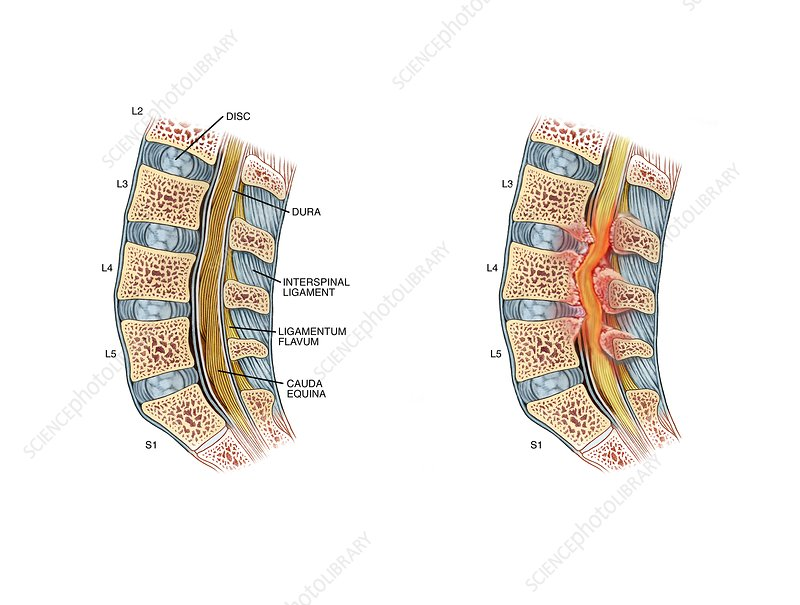 Nerve compression in lumbar stenosis