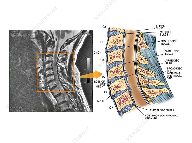 Bulging discs in the cervical spine