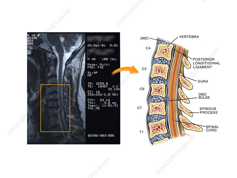 Bulging disc in the cervical spine
