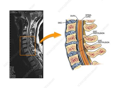 Protruding discs in the cervical spine