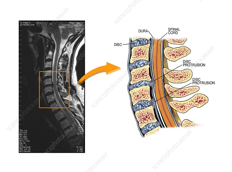 protruding discs in the cervical spine - stock image - c021/0234 - science  photo library