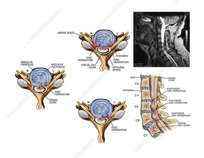 Slipped discs in the cervical spine