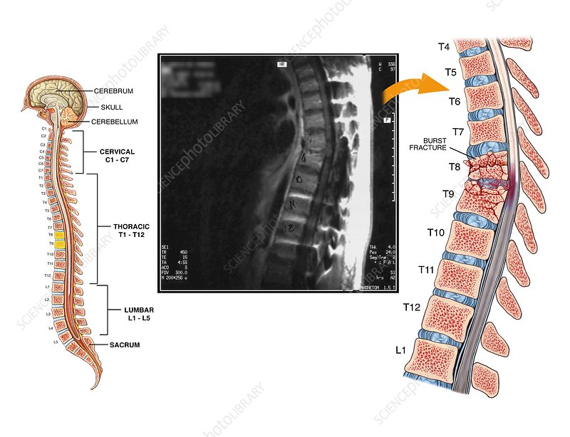 Burst fractures of the thoracic spine