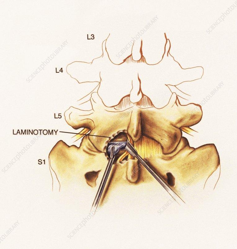 Laminotomy surgery on slipped disc