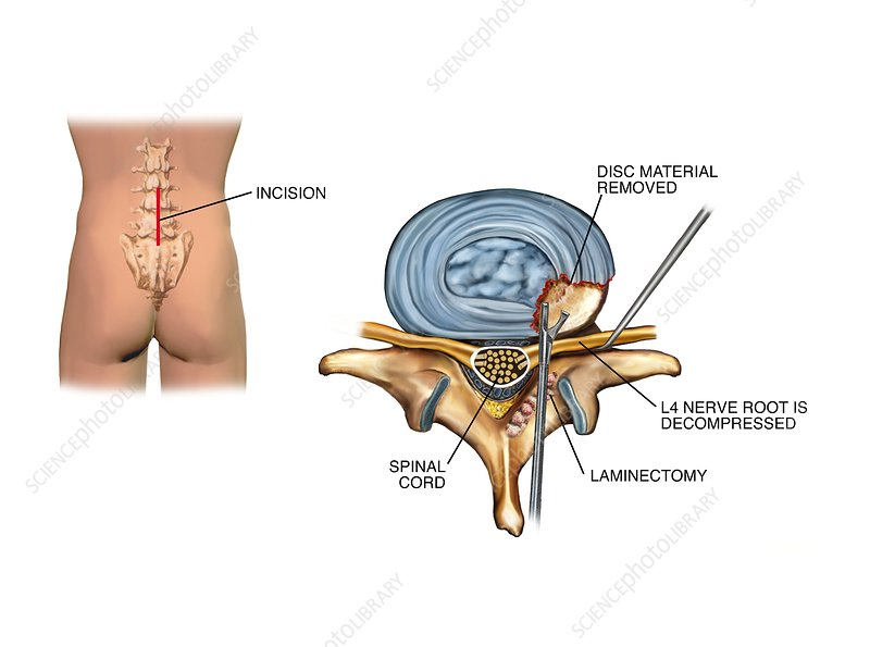 Laminectomy surgery on slipped disc