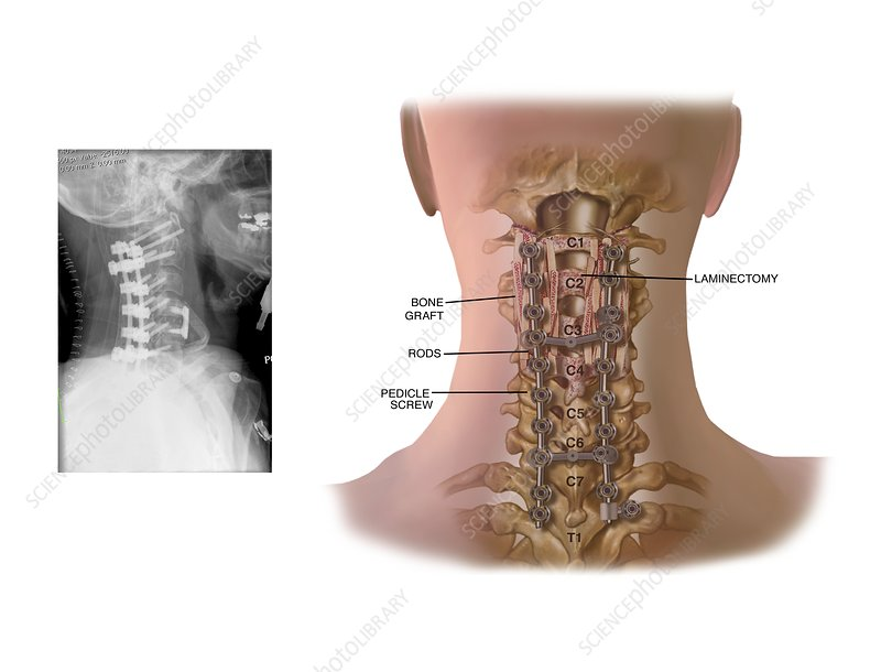 Surgery to fuse the cervical spine