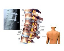 Surgery to fuse the thoracic spine