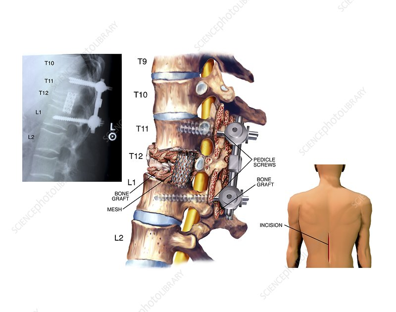 Surgery to fuse the thoracic spine - Stock Image C021/0356 - Science ...