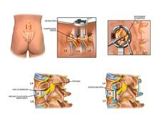 Surgery to fuse the lumbar spine