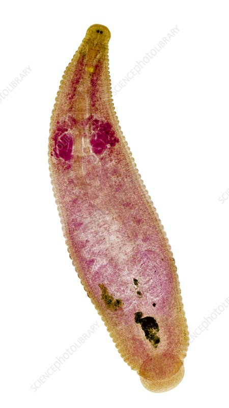 Leech, light micrograph