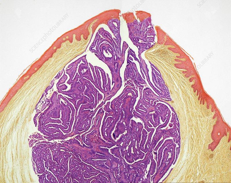 Labial cyst, light micrograph