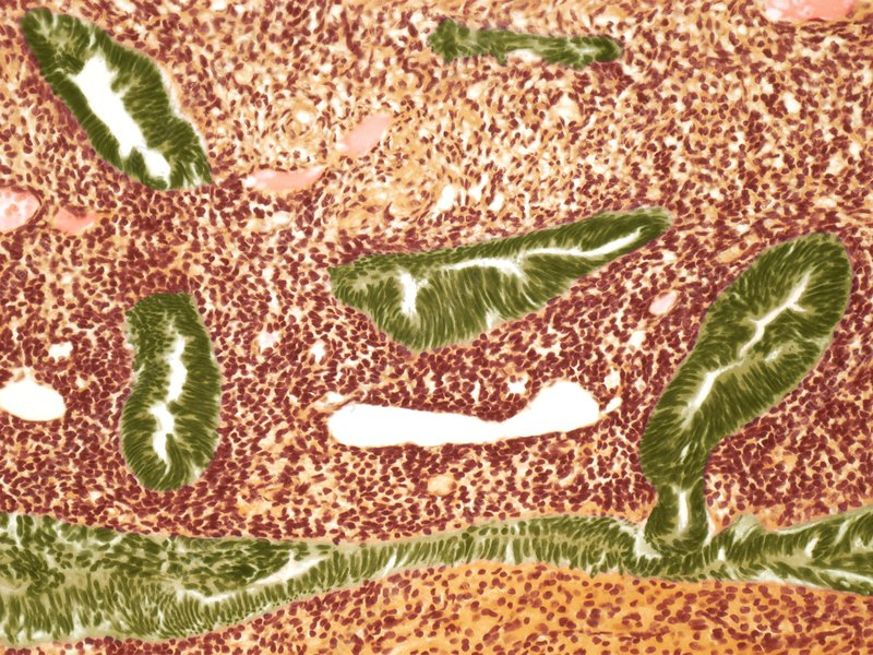 Endometrial cancer, light micrograph