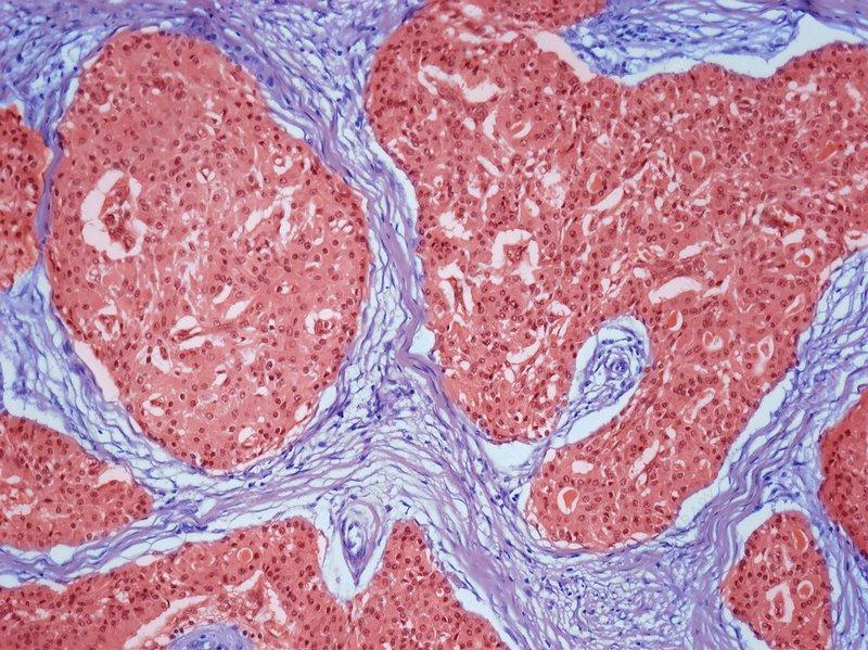 oncocytoma, light micrograph