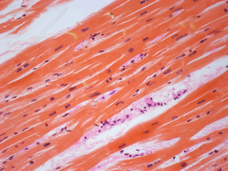 Human cardiac muscle, light micrograph