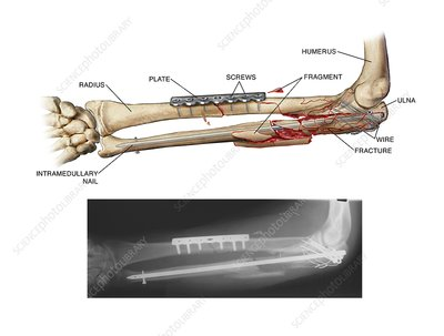 Internal fixation of fractured arm bones