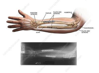 Internal fixation of fractured arm bones