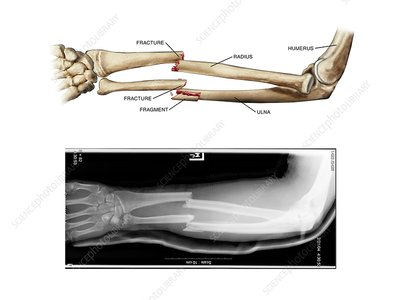 Comminuted fractures of arm bones