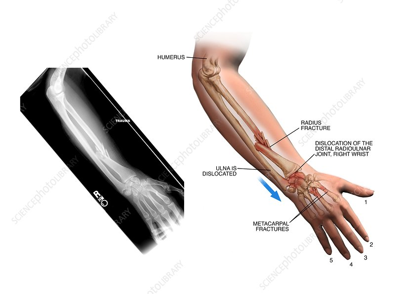 Fractured arm and hand bones