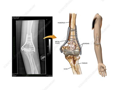 Internal fixation of fractured elbow