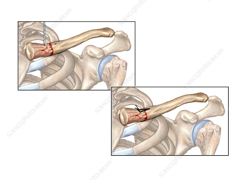 Internal fixation of broken collar bone