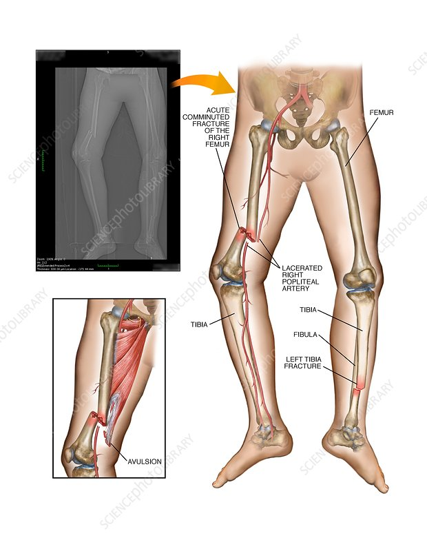 Fractures Of Femur And Tibia Stock Image C0210798 Science