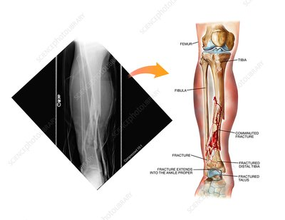 Comminuted fracture of the tibia
