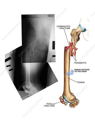 Comminuted fracture of the femur