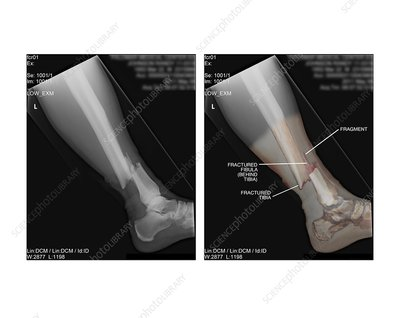 Open fracture of tibia and fibula, X-rays