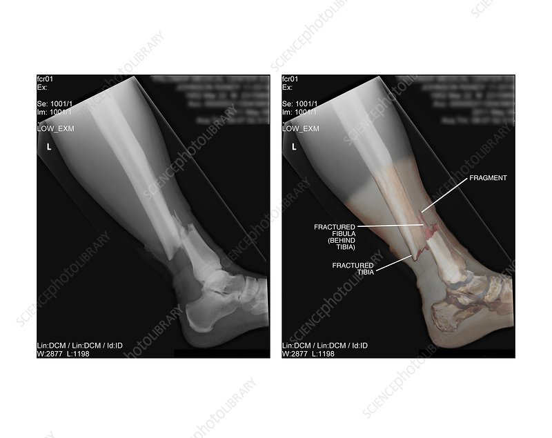 Open Fracture Of Tibia And Fibula X Rays Stock Image C0210801