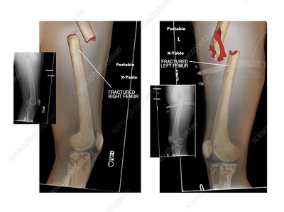 Fractures of right and left femurs