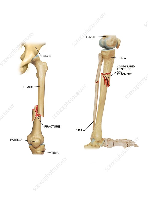 Fractures of the femur and tibia, artwork