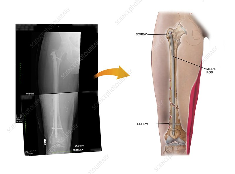 Internal fixation of fractured femur - Stock Image - C021/0807