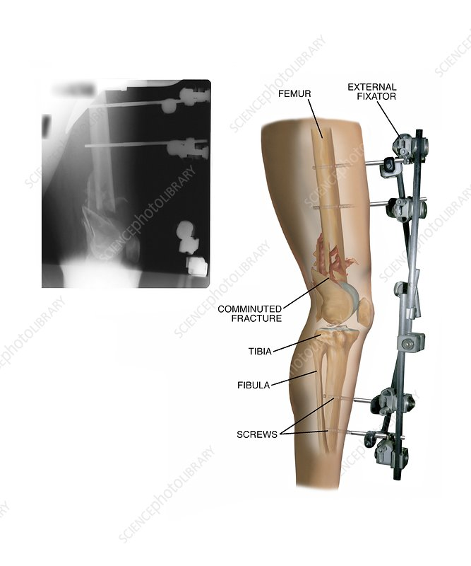 External fixation of fractured femur - Stock Image - C021/0808