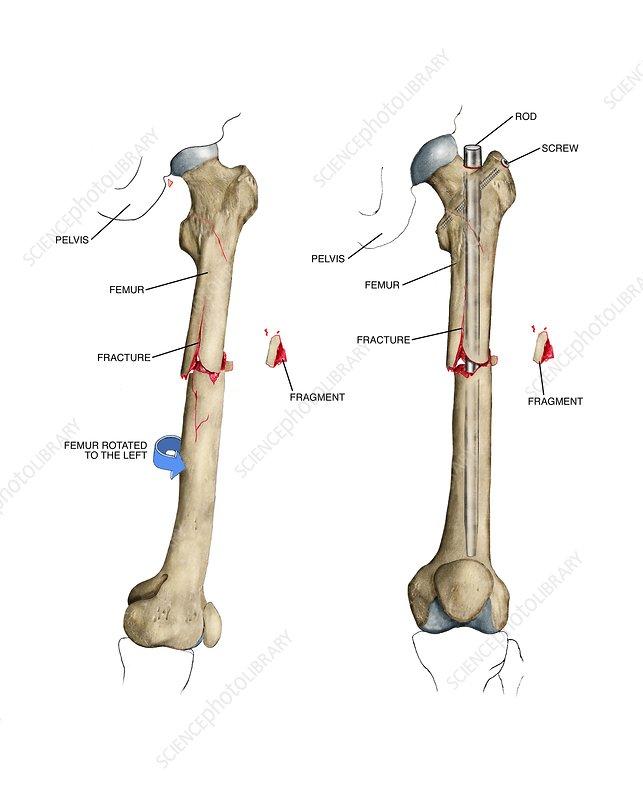 Internal fixation of fractured femur