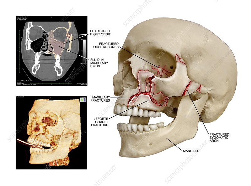 Multiple facial skull fractures