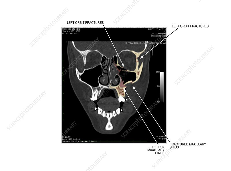 Facial skull fractures, CT scan