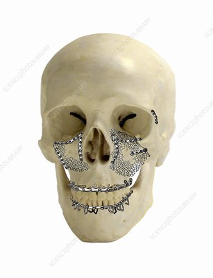 Facial skull fractures fixation, artwork